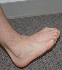 restoring vital energy to toes, healing toes