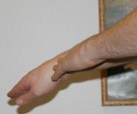 restoring vital energy to wrist, healing wrist